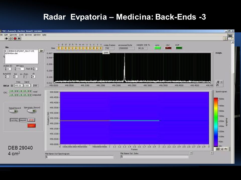 Radar Evpatoria – Medicina: Back-Ends -3