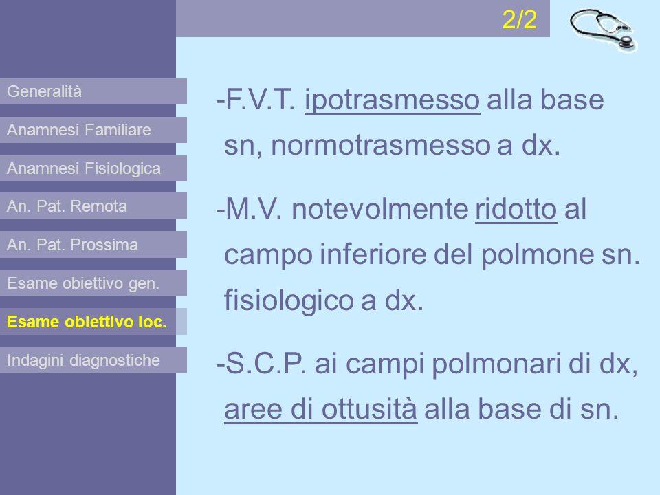 -F.V.T. ipotrasmesso alla base sn, normotrasmesso a dx.