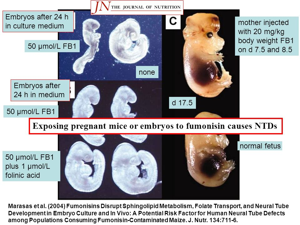Exposing pregnant mice or embryos to fumonisin causes NTDs