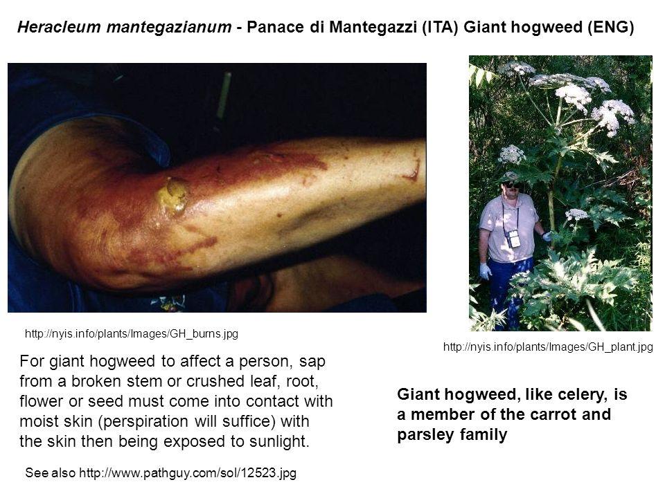 Heracleum mantegazianum - Panace di Mantegazzi (ITA) Giant hogweed (ENG)