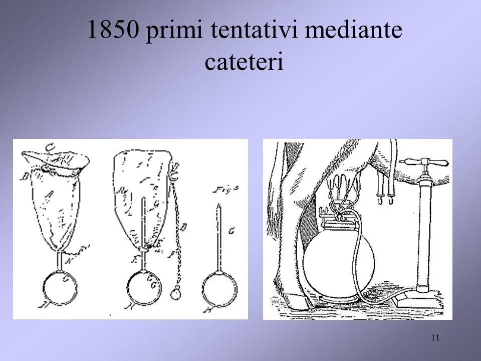 1850 primi tentativi mediante cateteri