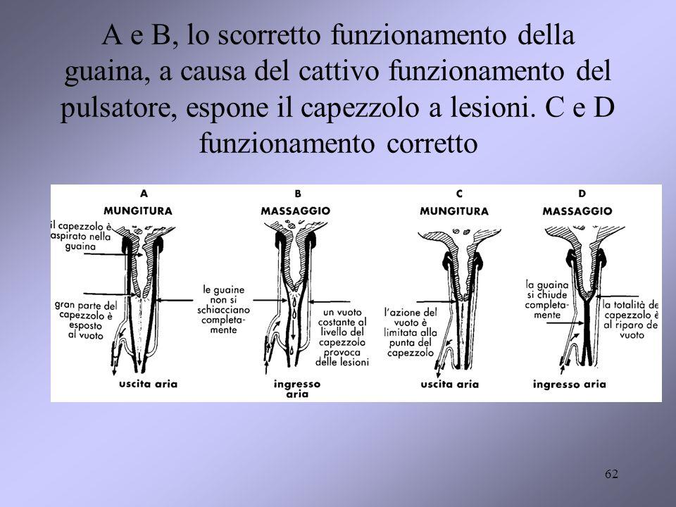 A e B, lo scorretto funzionamento della guaina, a causa del cattivo funzionamento del pulsatore, espone il capezzolo a lesioni.