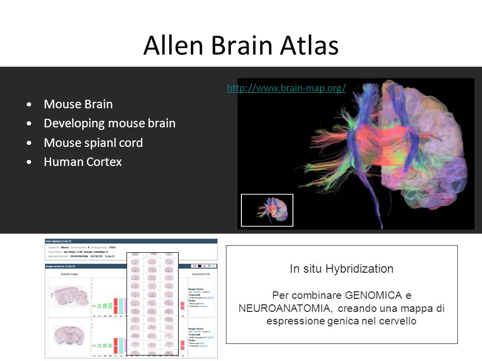 Allen Brain Atlas Mouse Brain Developing mouse brain Mouse spianl cord