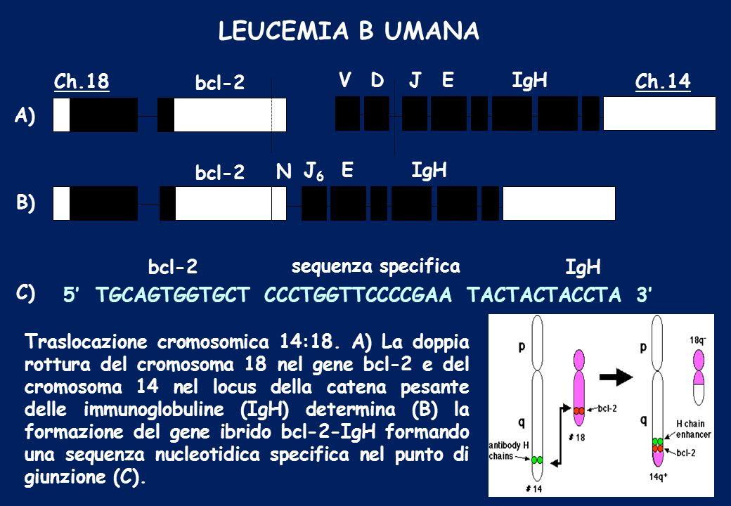 LEUCEMIA B UMANA Ch.18 bcl-2 V D Ch.14 J E IgH J6 N