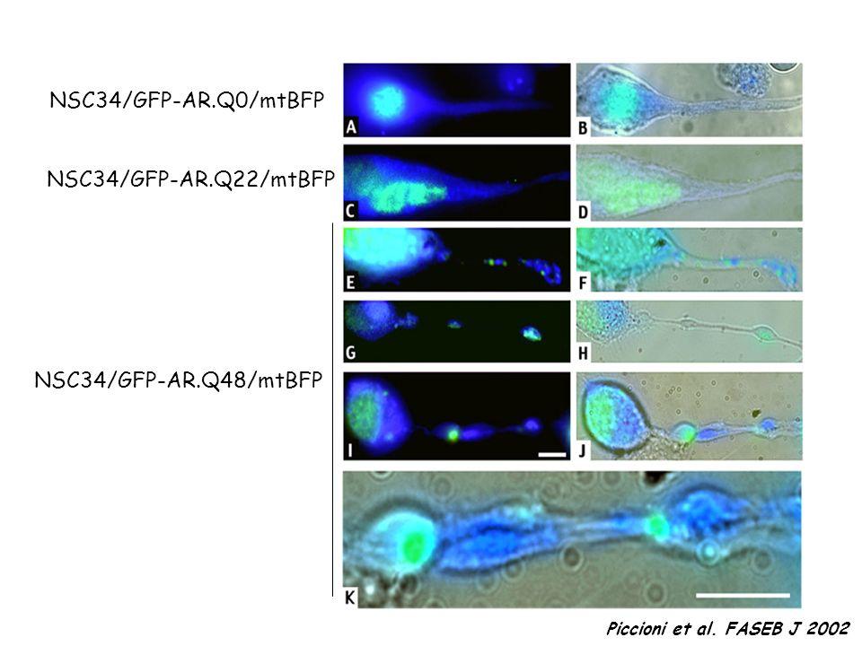 NSC34/GFP-AR.Q0/mtBFP NSC34/GFP-AR.Q22/mtBFP NSC34/GFP-AR.Q48/mtBFP
