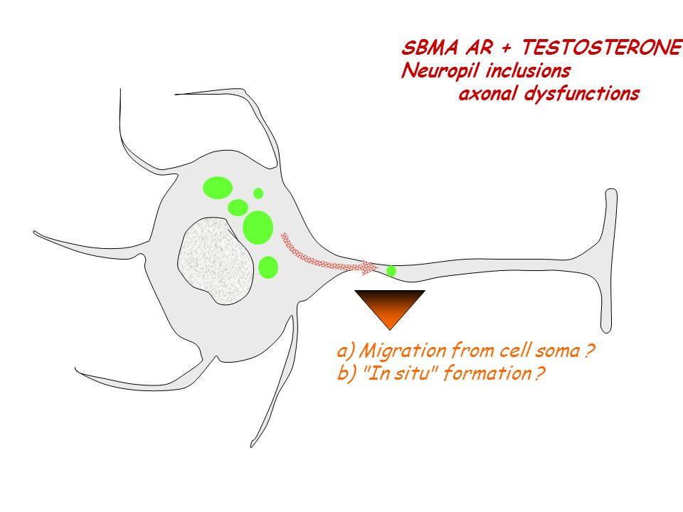 SBMA AR + TESTOSTERONE Neuropil inclusions. axonal dysfunctions.