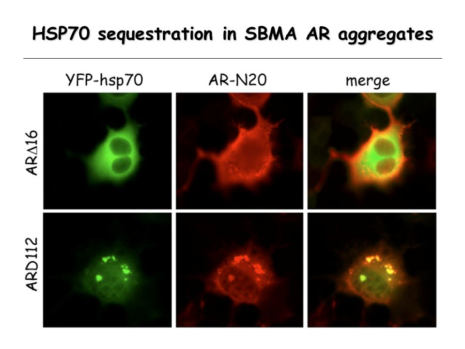 HSP70 sequestration in SBMA AR aggregates