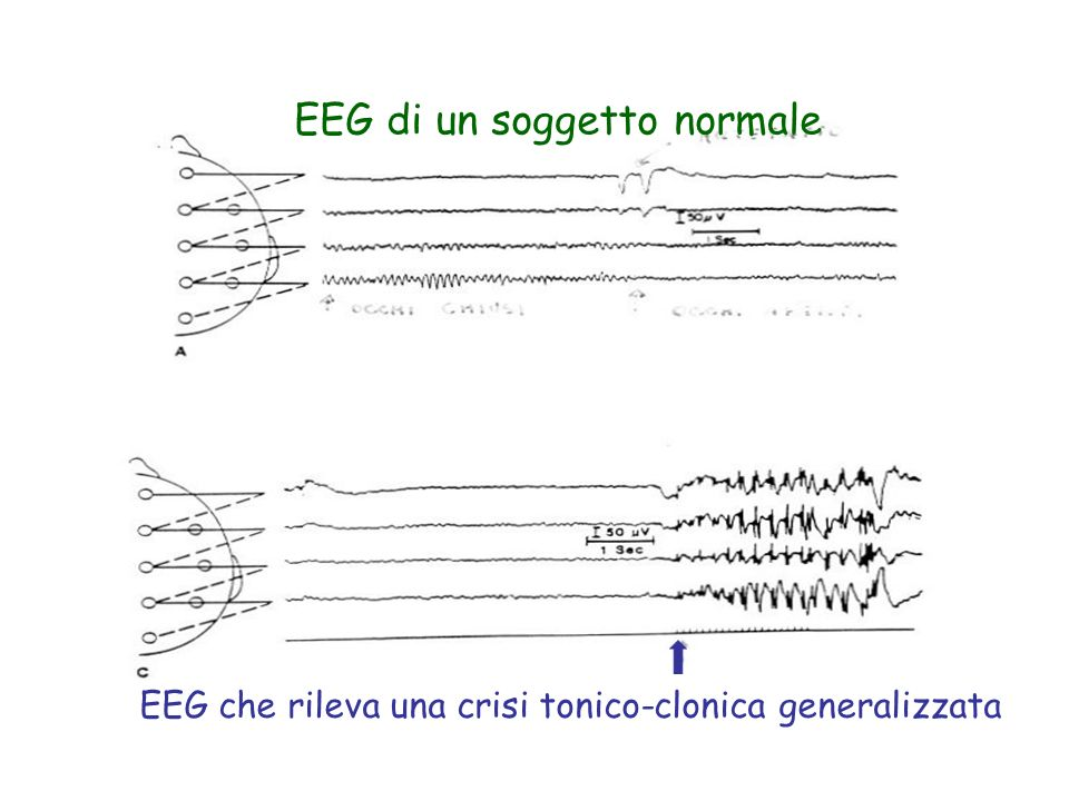 EEG di un soggetto normale