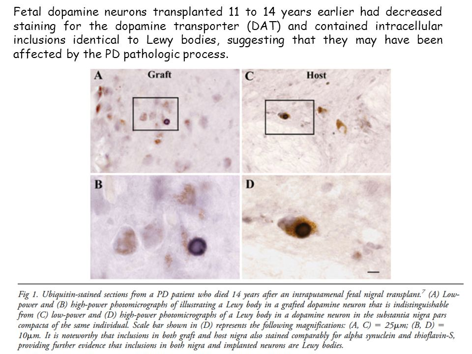 Fetal dopamine neurons transplanted 11 to 14 years earlier had decreased staining for the dopamine transporter (DAT) and contained intracellular inclusions identical to Lewy bodies, suggesting that they may have been affected by the PD pathologic process.