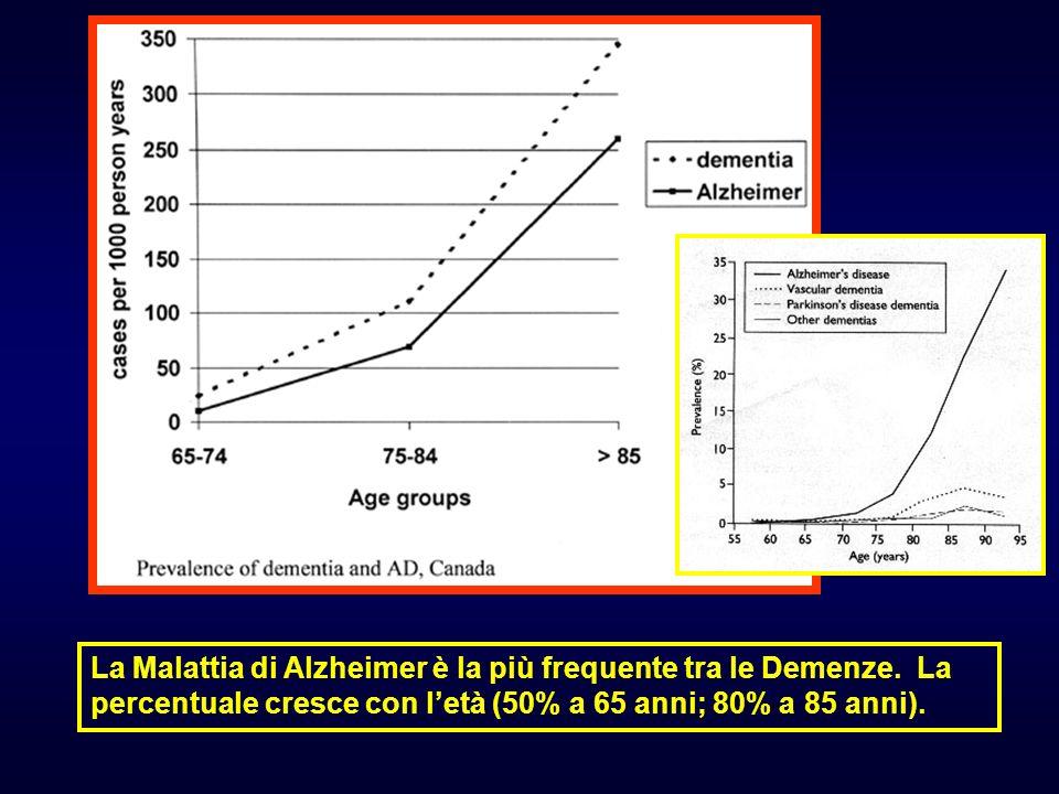 La Malattia di Alzheimer è la più frequente tra le Demenze