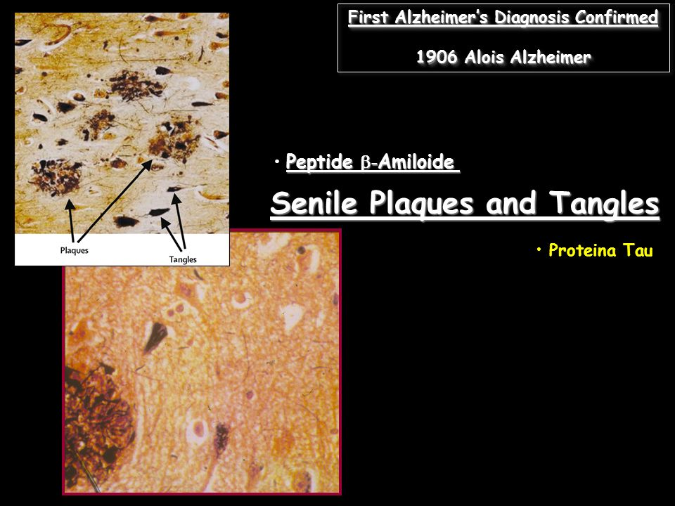 First Alzheimer's Diagnosis Confirmed Senile Plaques and Tangles
