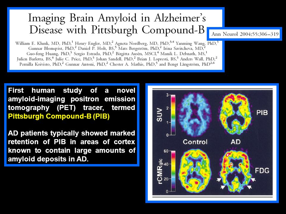 First human study of a novel amyloid-imaging positron emission tomography (PET) tracer, termed Pittsburgh Compound-B (PIB)