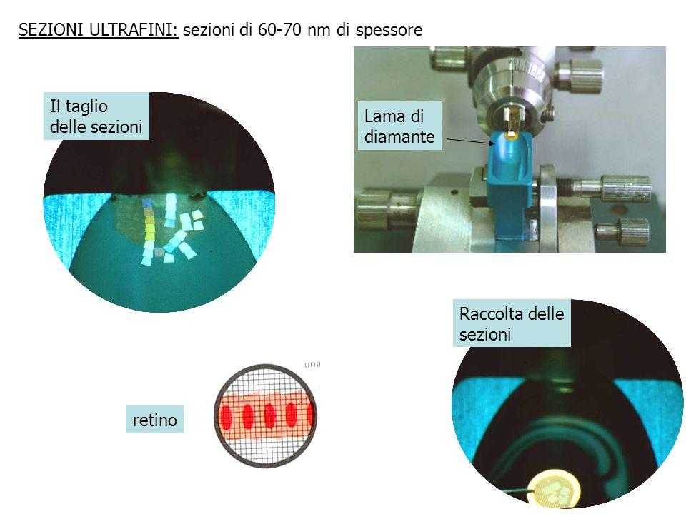 SEZIONI ULTRAFINI: sezioni di 60-70 nm di spessore