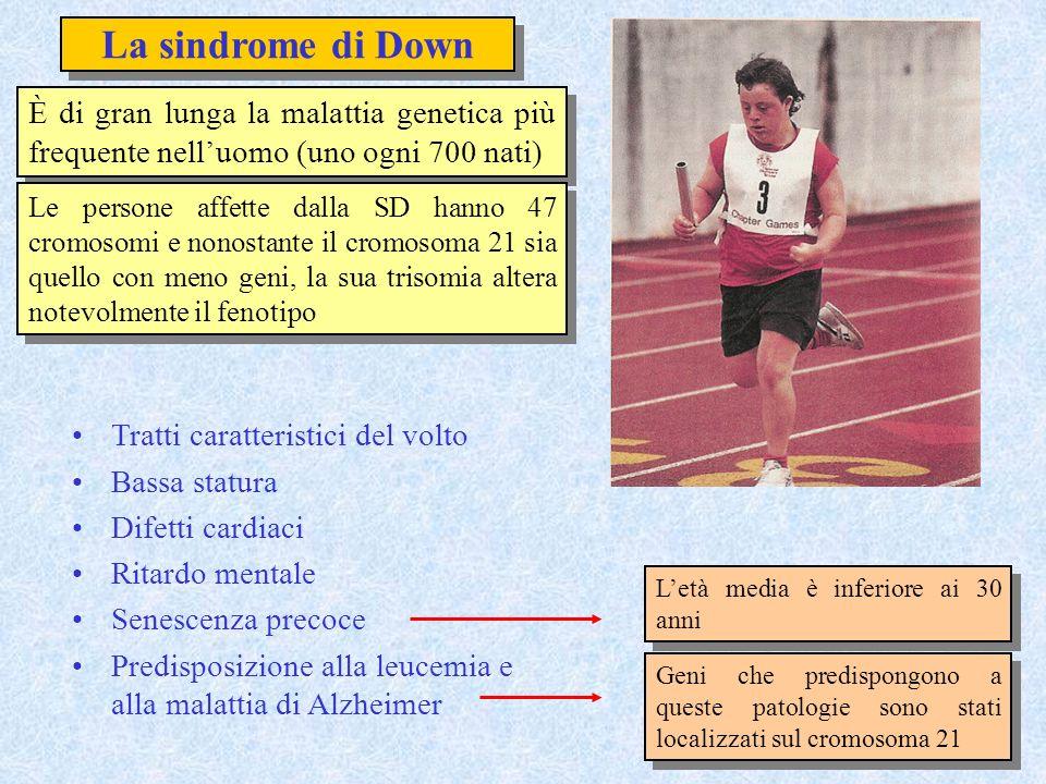 La sindrome di Down È di gran lunga la malattia genetica più frequente nell'uomo (uno ogni 700 nati)