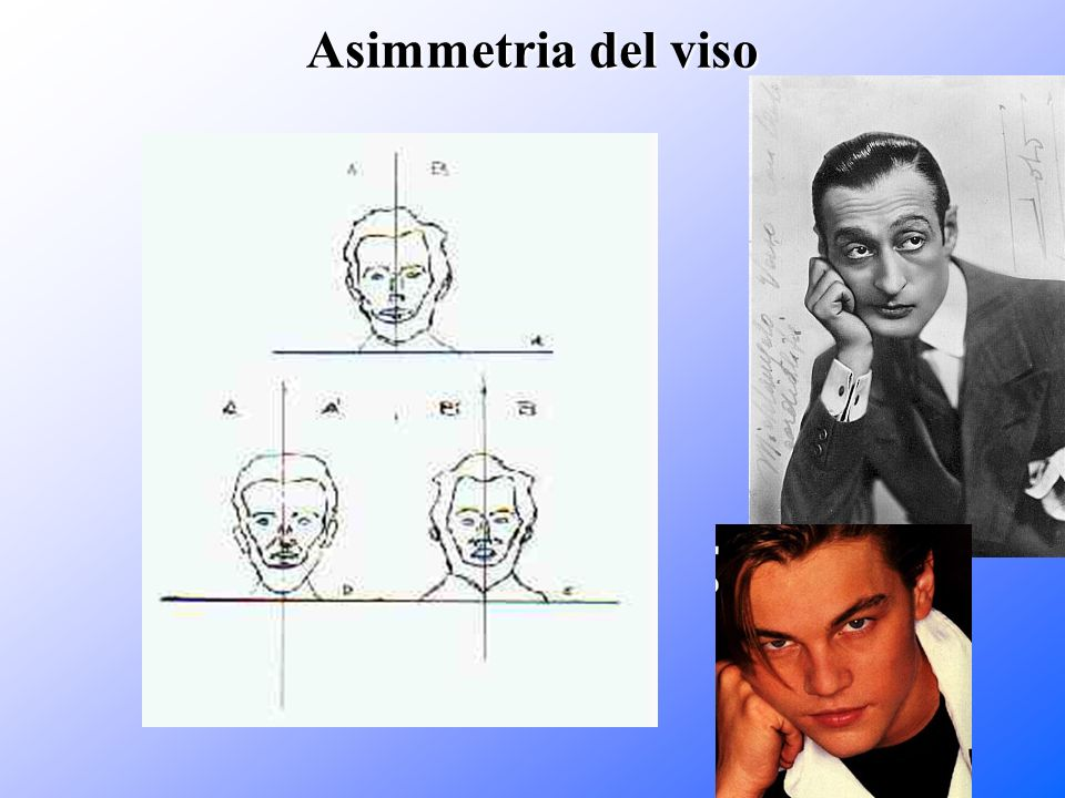 Asimmetria del viso