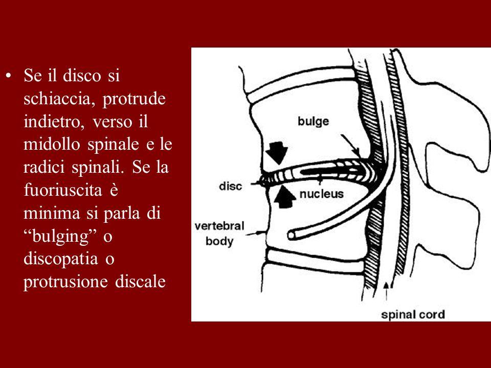 Se il disco si schiaccia, protrude indietro, verso il midollo spinale e le radici spinali.