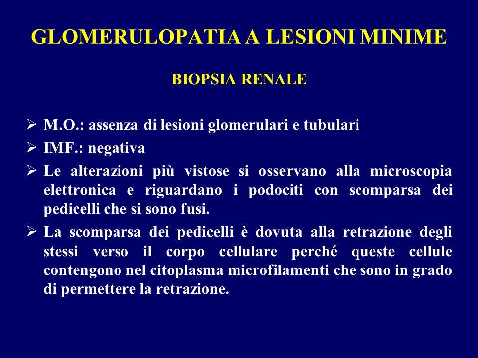 GLOMERULOPATIA A LESIONI MINIME