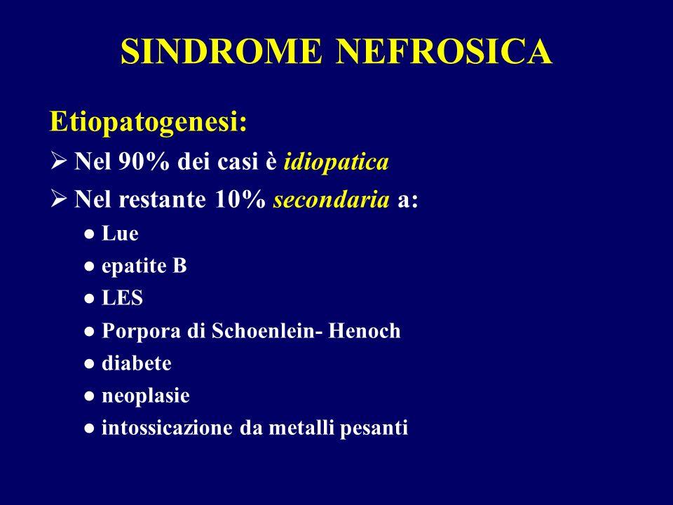 SINDROME NEFROSICA Etiopatogenesi: Nel 90% dei casi è idiopatica