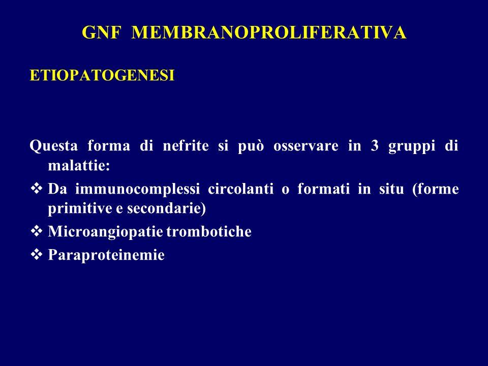 GNF MEMBRANOPROLIFERATIVA