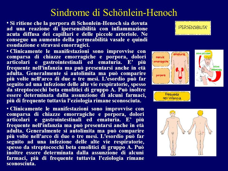 Sindrome di Schönlein-Henoch