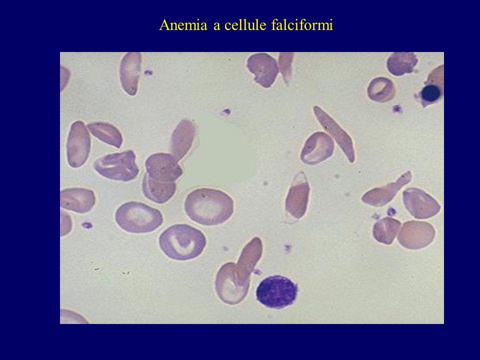 Anemia a cellule falciformi