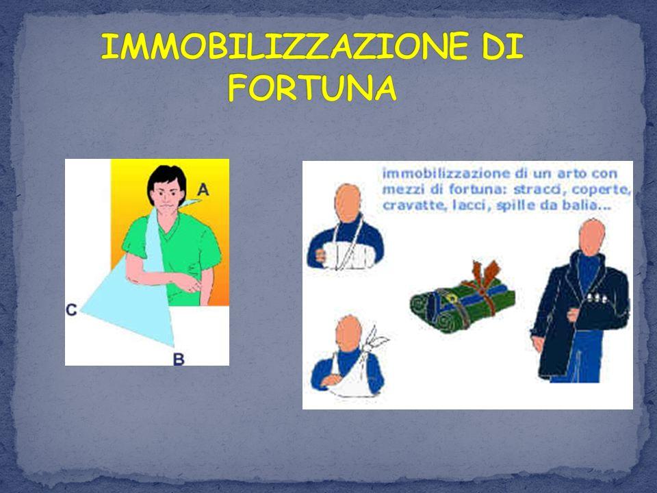 IMMOBILIZZAZIONE DI FORTUNA