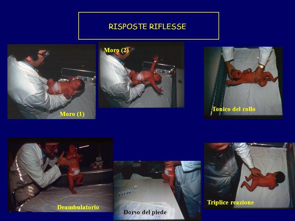 RISPOSTE RIFLESSE Moro (2) Tonico del collo Moro (1) Triplice reazione