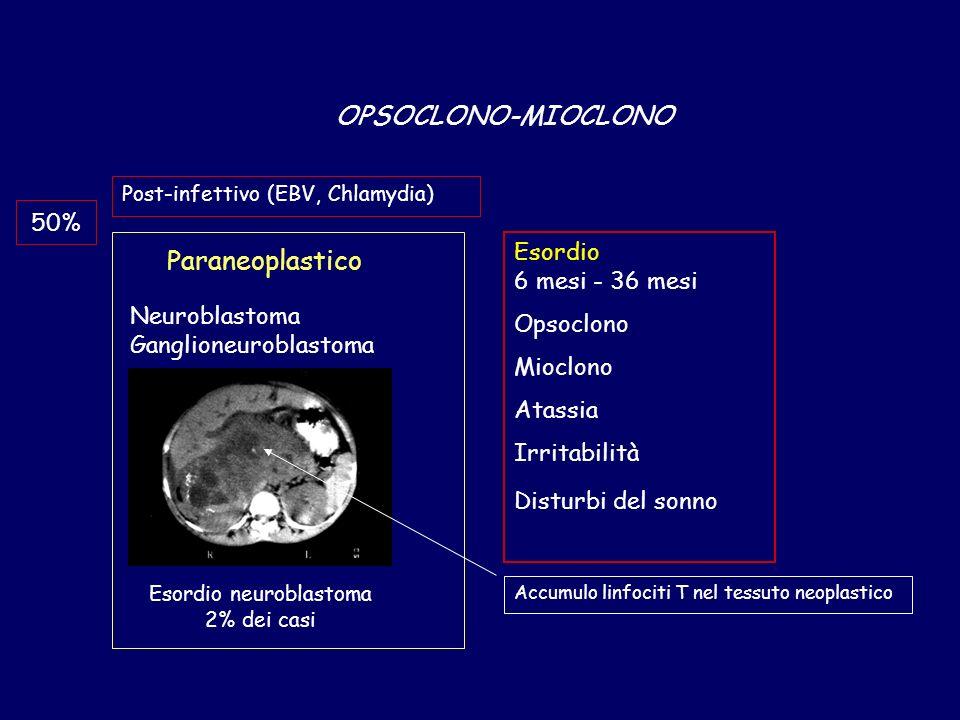 Esordio neuroblastoma 2% dei casi
