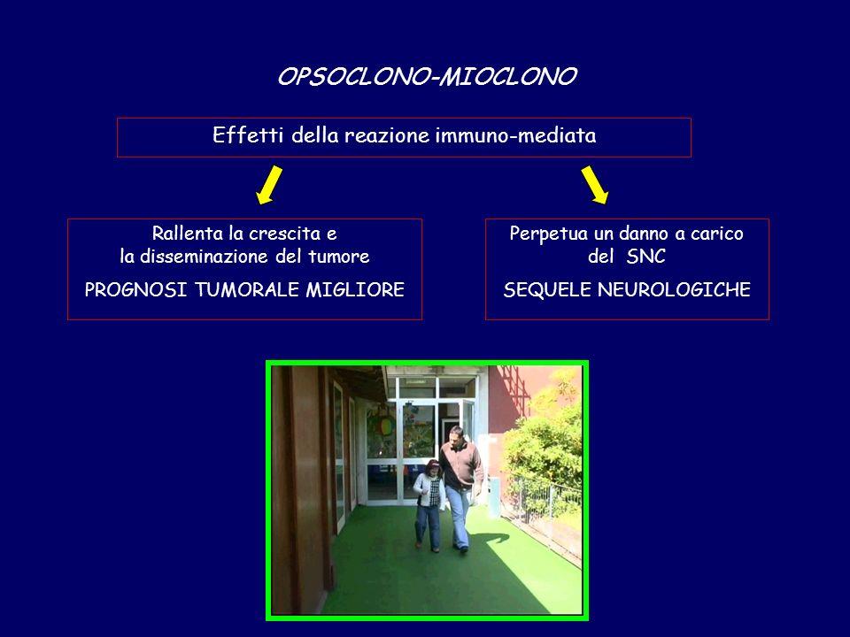 OPSOCLONO-MIOCLONO Effetti della reazione immuno-mediata