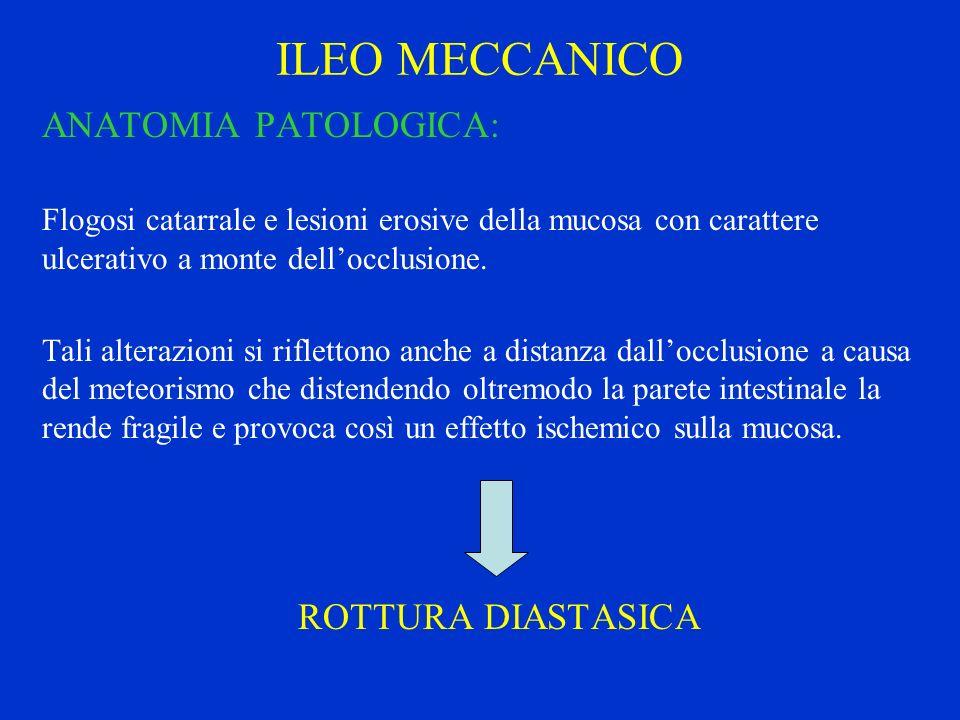 ILEO MECCANICO ANATOMIA PATOLOGICA: