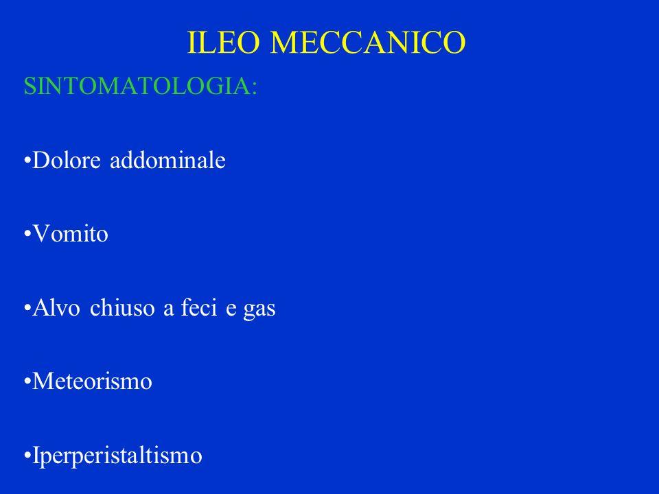 ILEO MECCANICO SINTOMATOLOGIA: Dolore addominale Vomito