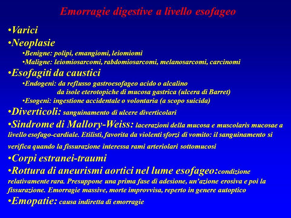 Emorragie digestive a livello esofageo