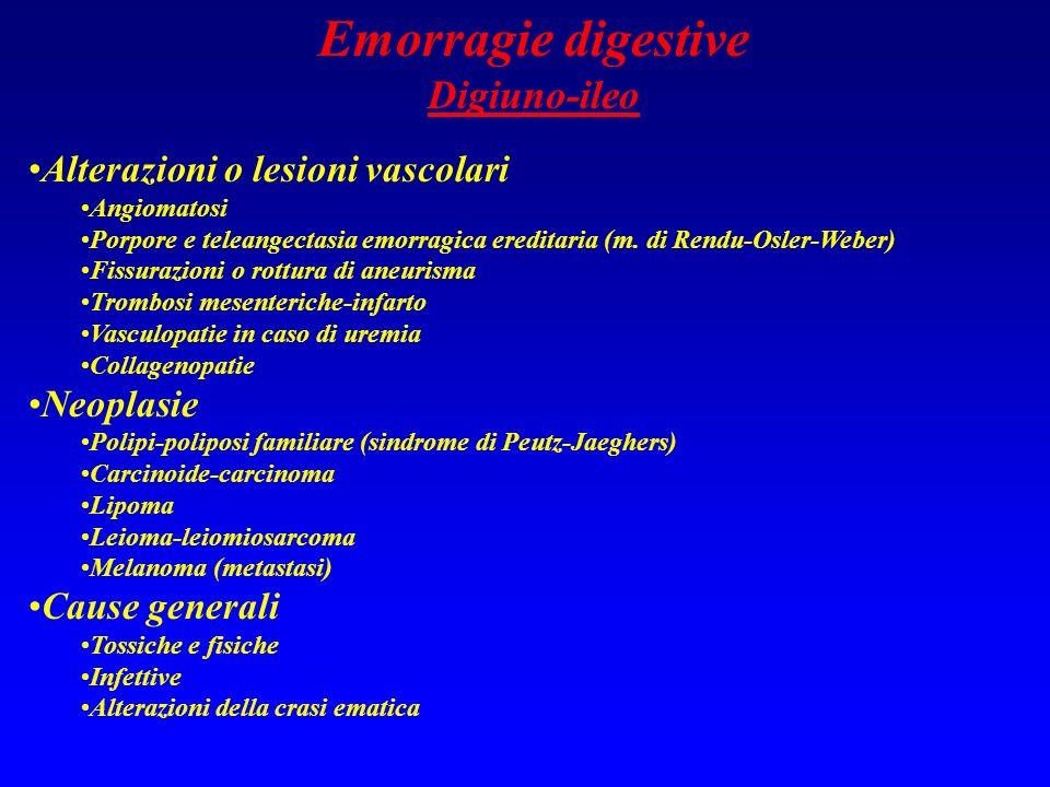 Emorragie digestive Digiuno-ileo Alterazioni o lesioni vascolari