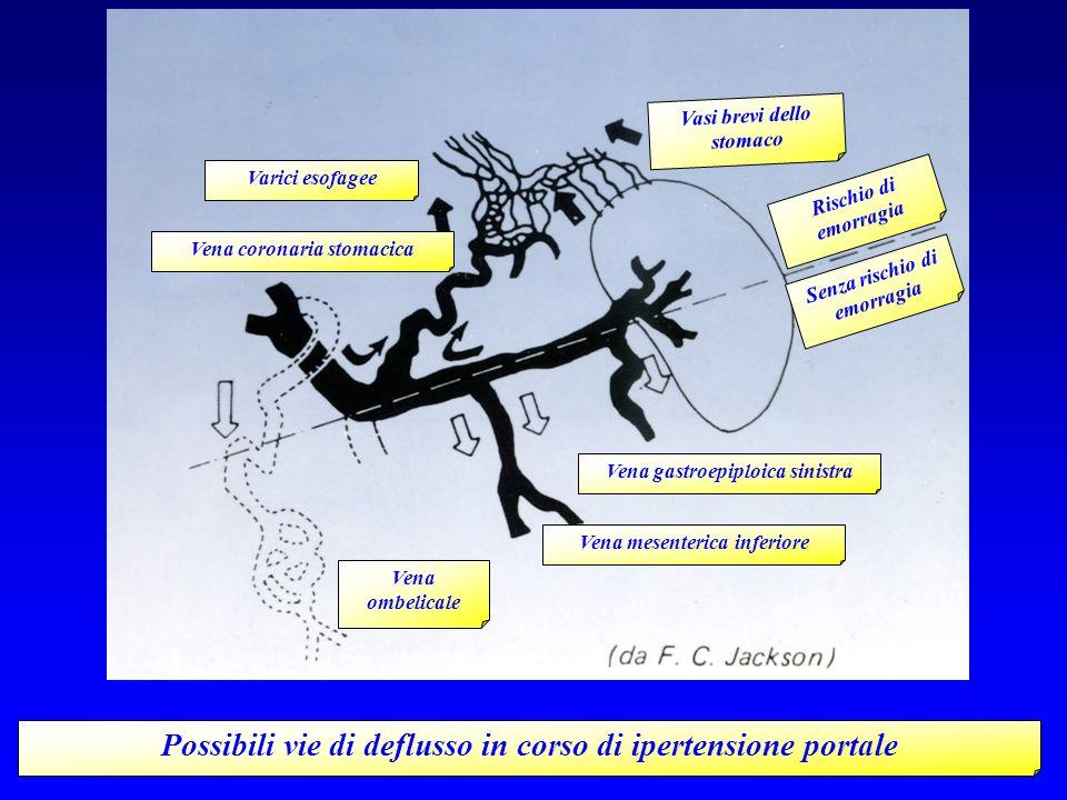 Possibili vie di deflusso in corso di ipertensione portale