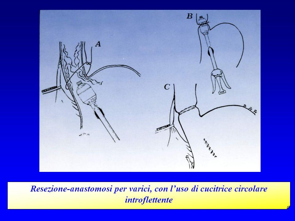 Resezione-anastomosi per varici, con l'uso di cucitrice circolare introflettente