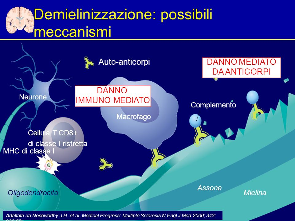 Demielinizzazione: possibili meccanismi
