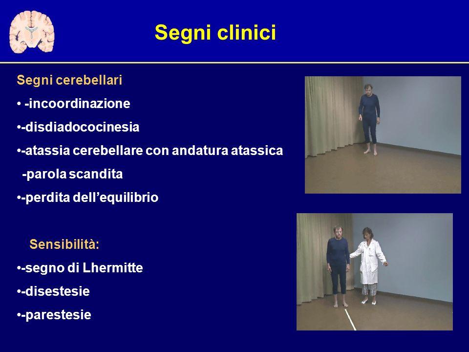 Segni clinici Segni cerebellari -incoordinazione -disdiadococinesia