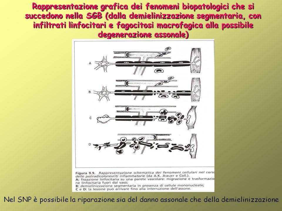 Rappresentazione grafica dei fenomeni biopatologici che si succedono nella SGB (dalla demielinizzazione segmentaria, con infiltrati linfocitari e fagocitosi macrofagica alla possibile degenerazione assonale)
