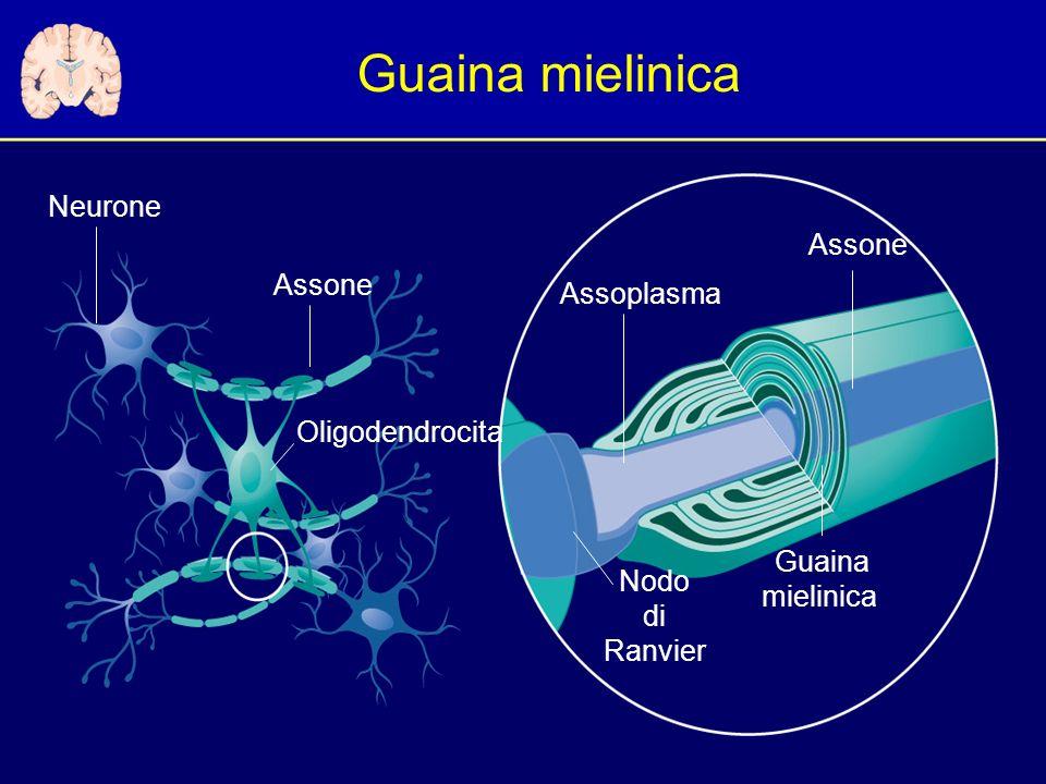 Guaina mielinica Neurone Assone Assone Assoplasma Oligodendrocita