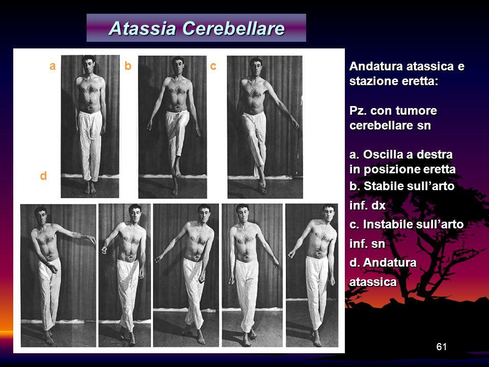 Atassia Cerebellare a b c Andatura atassica e stazione eretta: