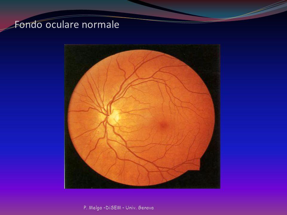 Fondo oculare normale P. Melga -DiSEM - Univ. Genova