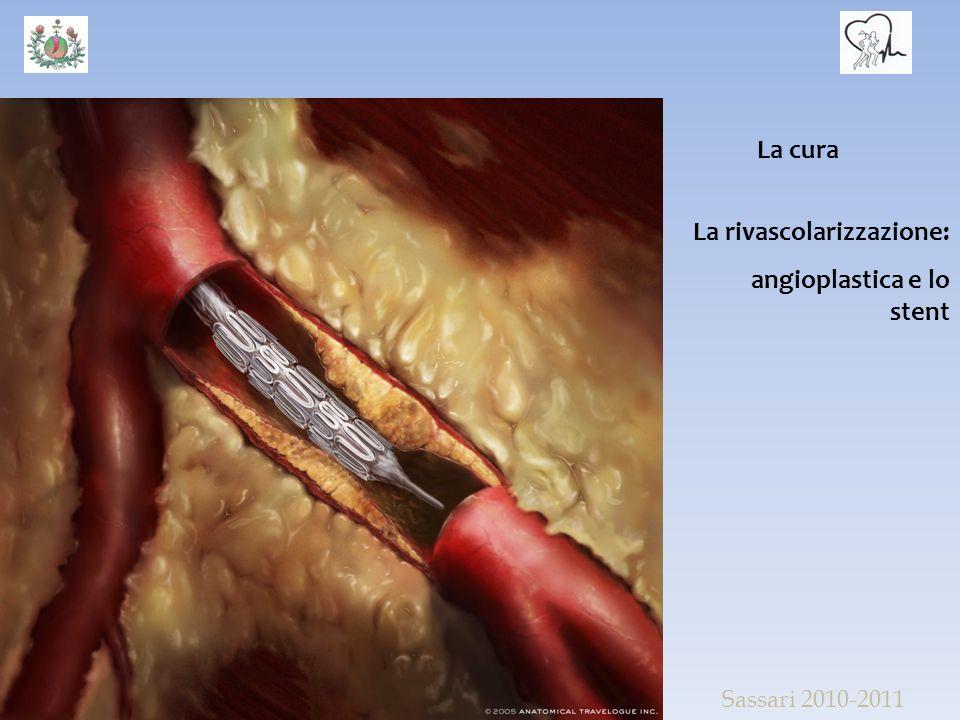 La rivascolarizzazione: angioplastica e lo stent