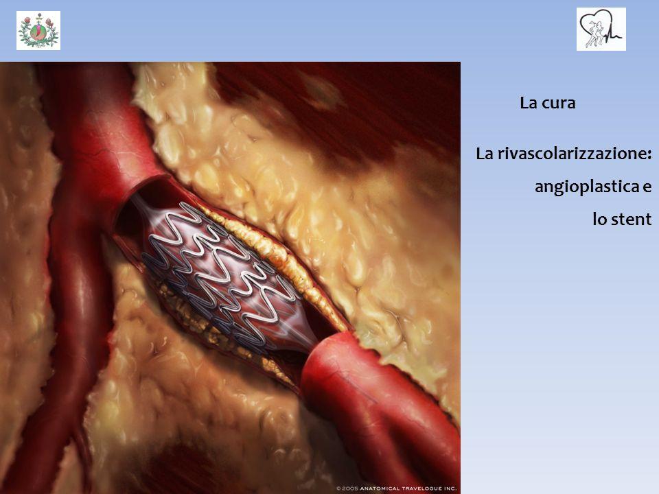 La cura La rivascolarizzazione: angioplastica e lo stent