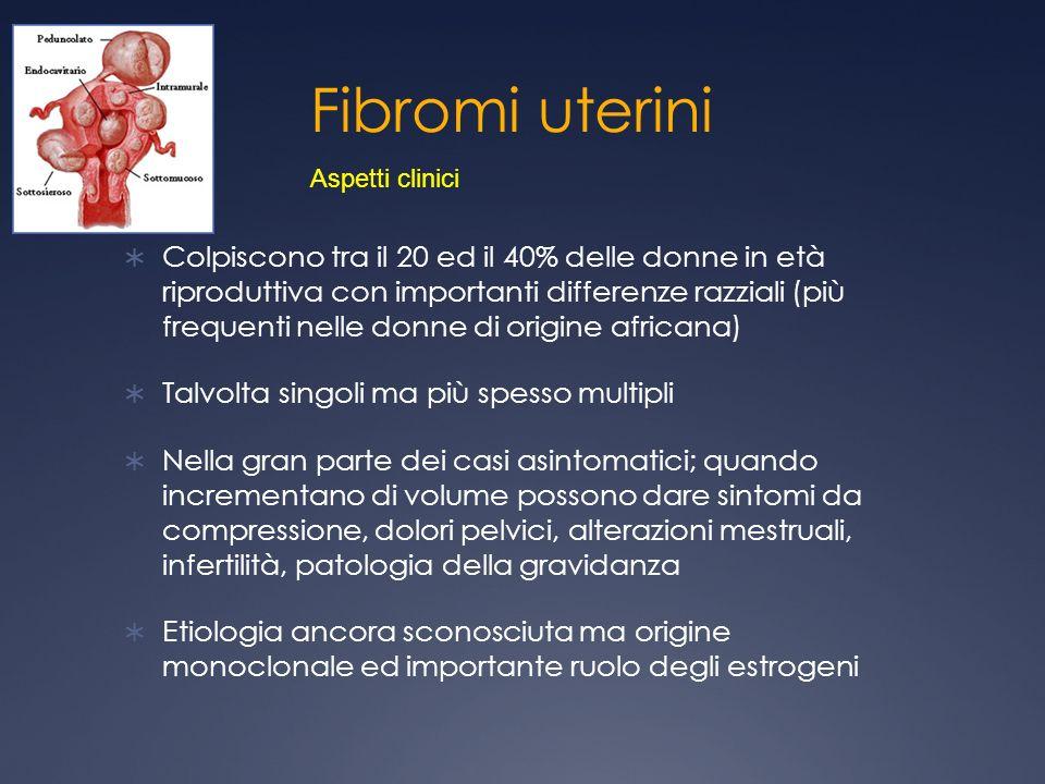 Fibromi uterini Aspetti clinici.