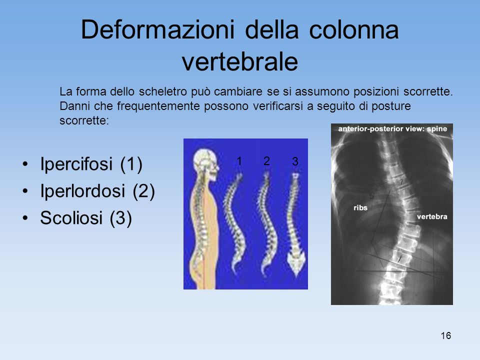Deformazioni della colonna vertebrale
