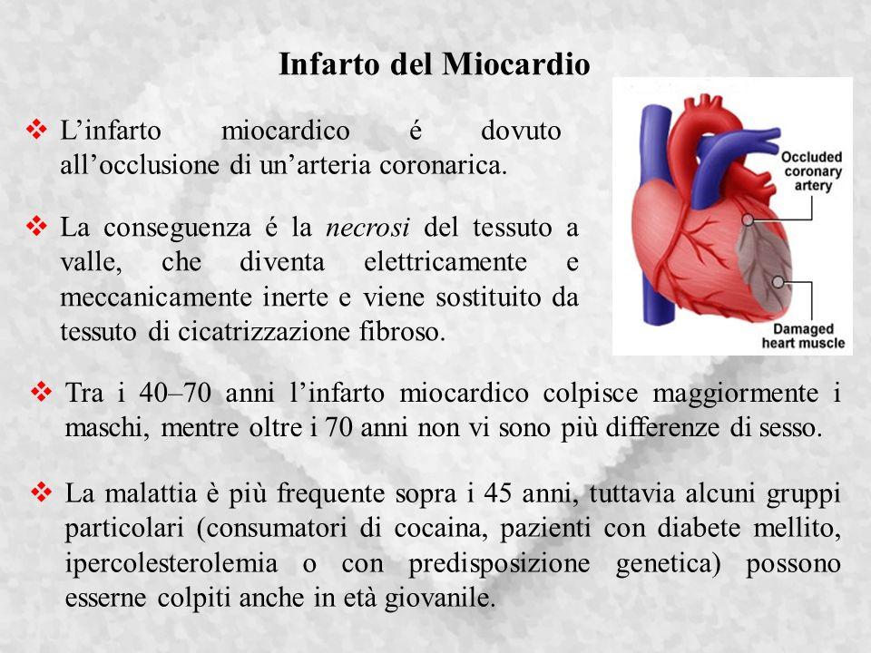 Infarto del Miocardio L'infarto miocardico é dovuto all'occlusione di un'arteria coronarica.