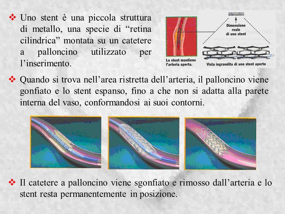 Uno stent è una piccola struttura di metallo, una specie di retina cilindrica montata su un catetere a palloncino utilizzato per l'inserimento.