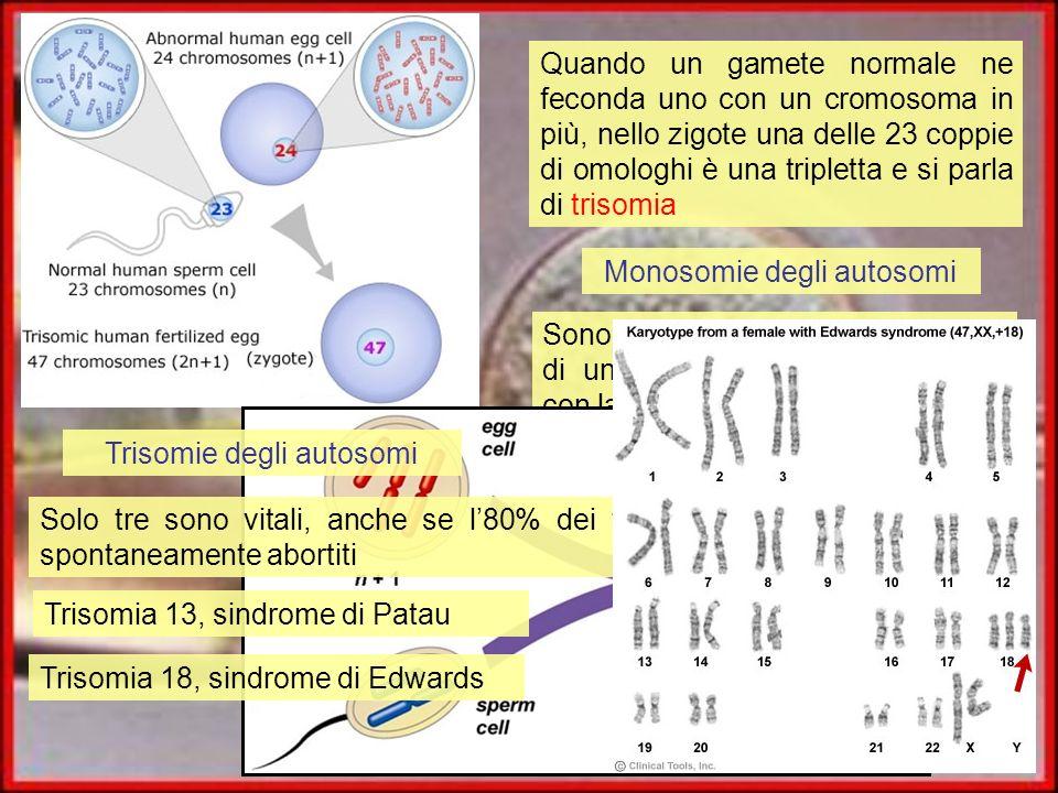 Monosomie degli autosomi