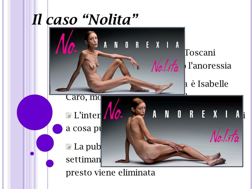 Il caso Nolita Campagna pubblicitaria di Toscani scioccante per dire No contro l'anoressia.