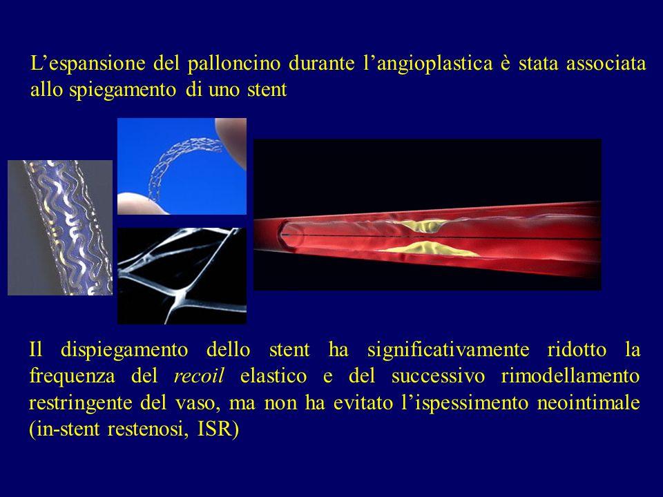 L'espansione del palloncino durante l'angioplastica è stata associata allo spiegamento di uno stent